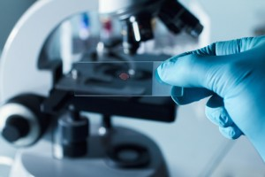 Bloed analyse microscoop